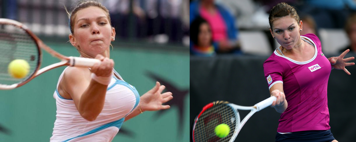 Simona Halep breasts - before and after